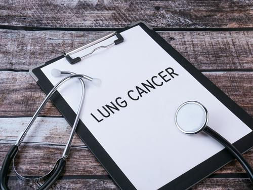 Lung Cancer - Changing Paradigm In Management of Lung Cancer